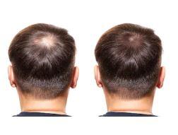 Nouvelle technologie de microgreffe de cheveux